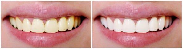 在漂白前后的牙 库存图片