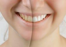 在漂白的牙前后的青少年的女孩微笑 免版税库存图片