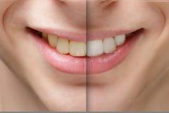 在漂白的牙前后的年轻人微笑 图库摄影