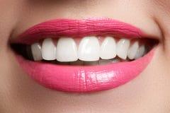 在漂白的以后完善微笑 牙齿保护和漂白牙 与伟大的牙的妇女微笑 微笑特写镜头以白色健康 免版税图库摄影
