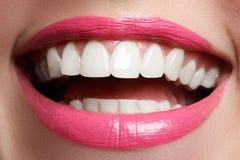 在漂白的以后完善微笑 牙齿保护和漂白牙 与伟大的牙的妇女微笑 微笑特写镜头以白色健康 免版税库存照片