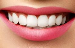 在漂白的以后完善微笑 牙齿保护和漂白牙 免版税库存图片
