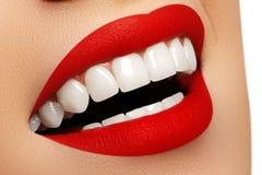 在漂白的以后完善微笑 牙齿保护和漂白牙 免版税库存照片
