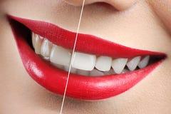 在漂白红色有嘴妇女的牙前后射击  库存图片
