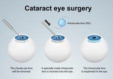 在灰色背景隔绝的大瀑布眼睛手术过程医疗传染媒介例证 向量例证