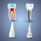 在灰色背景隔绝的传染媒介套3d现实干净和肮脏的牙 牙齿健康概念 口头关心,牙 向量例证