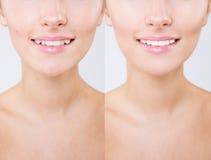 在牙漂白的或漂白治疗前后 年轻白种人女性` s微笑特写镜头  自然做 图库摄影