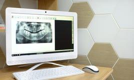 在牙的牙科快照的X-射线 在白色的背景计算机显示器查出的监控程序 免版税库存图片