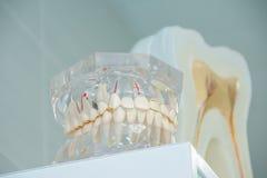 在牙医` s办公室清洗牙假牙,牙的牙齿裁减,牙模型, 免版税库存图片