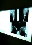 在狩医的X-射线 库存照片