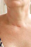 在甲状腺切除术以后的脖子伤痕 特写镜头 库存照片