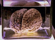 在甲醛瓶子的人脑 库存图片