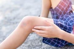 在男孩膝盖的创伤在得到的滑动事故以后 免版税库存图片