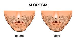 在男性下巴的脱发症areata 免版税图库摄影