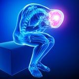 在男的头疼/偏头痛 图库摄影