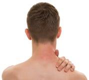 在白的真正的解剖学隔绝的男性后面脖子疼痛 免版税库存照片