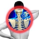 在白的真正的解剖学concep隔绝的脖子痛子宫颈脊椎 库存图片