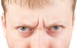 在白色的人的恼怒的眼睛 库存照片