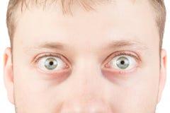 在白色的人的惊奇的眼睛 图库摄影