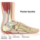 在白色背景的脚底fasciitis 3d医疗例证 向量例证