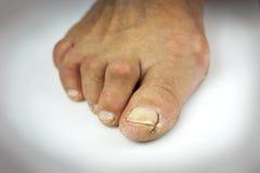 在白色背景的破裂的脚趾 库存照片
