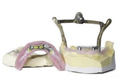 在白色隔绝的人的牙牙齿模子  库存照片