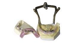 在白色隔绝的人的牙牙齿模子  免版税库存图片
