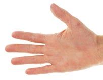 在的湿疹皮炎手掌 图库摄影