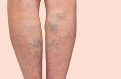 在的静脉曲张女性腿 库存图片