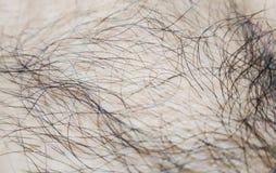 在皮肤的头发 宏指令 库存图片