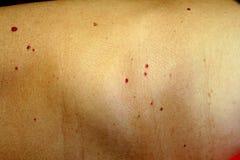 在皮肤的血管瘤 在身体的红色痣 许多痣 免版税库存照片