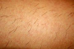 在皮肤的被继续生长的头发在刮以后 去壳 图库摄影