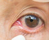 在眼睛妇女的结膜炎 免版税库存图片