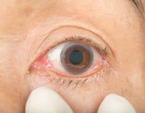 在眼睛妇女的结膜炎 免版税库存照片