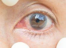 在眼睛妇女的结膜炎 库存照片