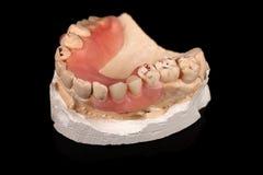 在石膏模型的假牙 免版税库存图片