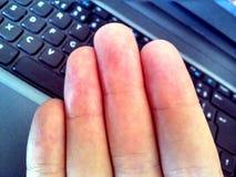 在笔记本键盘上的手指 免版税库存照片