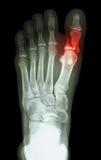 在第一个脚趾的破裂接近趾骨 免版税库存图片