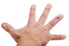 在第四个手指的手术后伤痕 库存照片