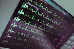 在精心照料的心脏病监视 免版税库存图片