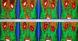 在红色/褐色/绿色的正常肾脏流程 库存照片