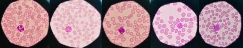 在红血球背景的白细胞 免版税库存图片