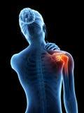 在肩关节的痛苦 免版税库存照片