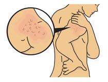 在肩膀的疹 免版税库存照片