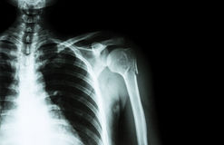 在肱骨(肱骨) (影片X-射线被留下的肩膀和空白的区域的脖子的破裂在右边) 库存照片