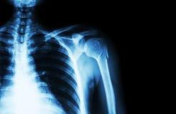 在肱骨(肱骨) (影片X-射线被留下的肩膀和空白的区域的脖子的破裂在右边) 免版税图库摄影