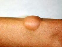 在胳膊的手肘的脂肪瘤 免版税库存照片