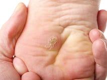 在脚下的干性皮肤 免版税库存图片