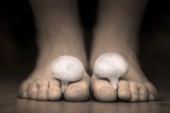 在脚趾脚之间的蘑菇仿效脚趾的真菌 免版税库存照片