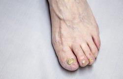 在脚趾钉子的真菌 图库摄影